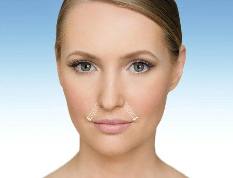 Убрать носогубные морщины с помощью инъекций